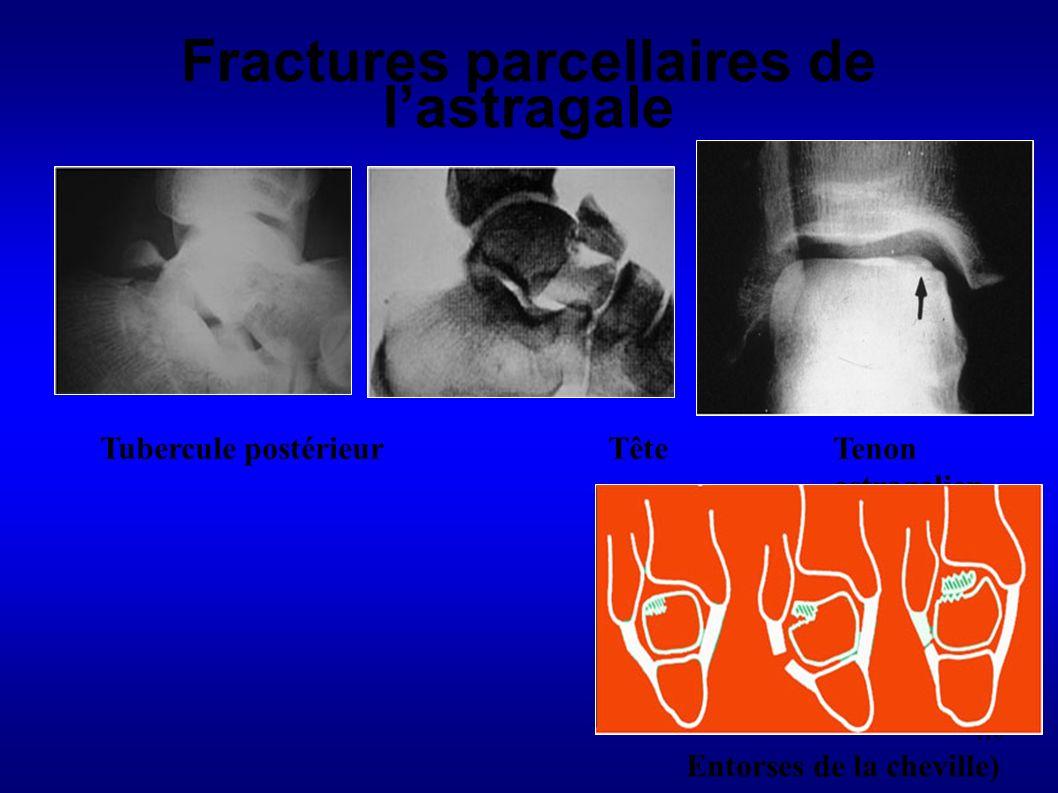 Fractures parcellaires de l'astragale