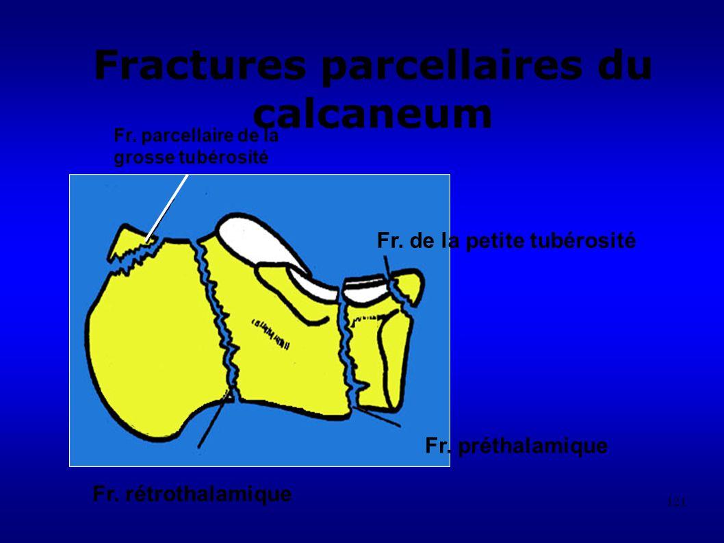 Fractures parcellaires du calcaneum