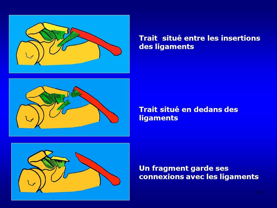 Trait situé entre les insertions des ligaments