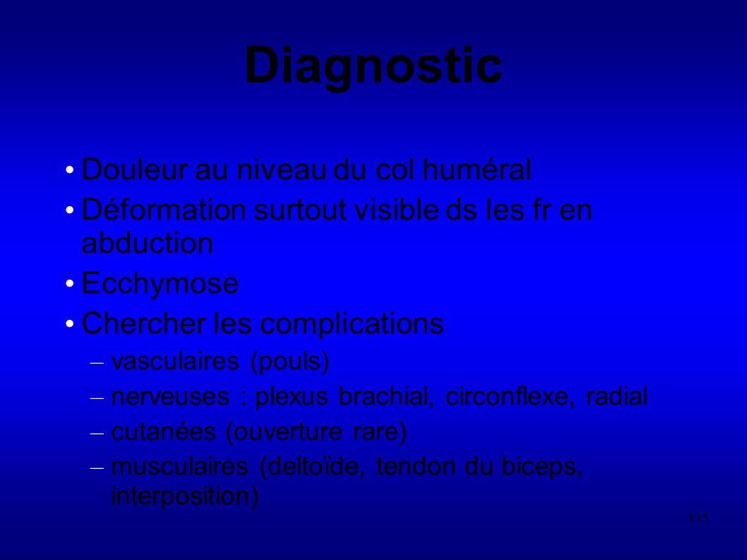 Diagnostic Douleur au niveau du col huméral