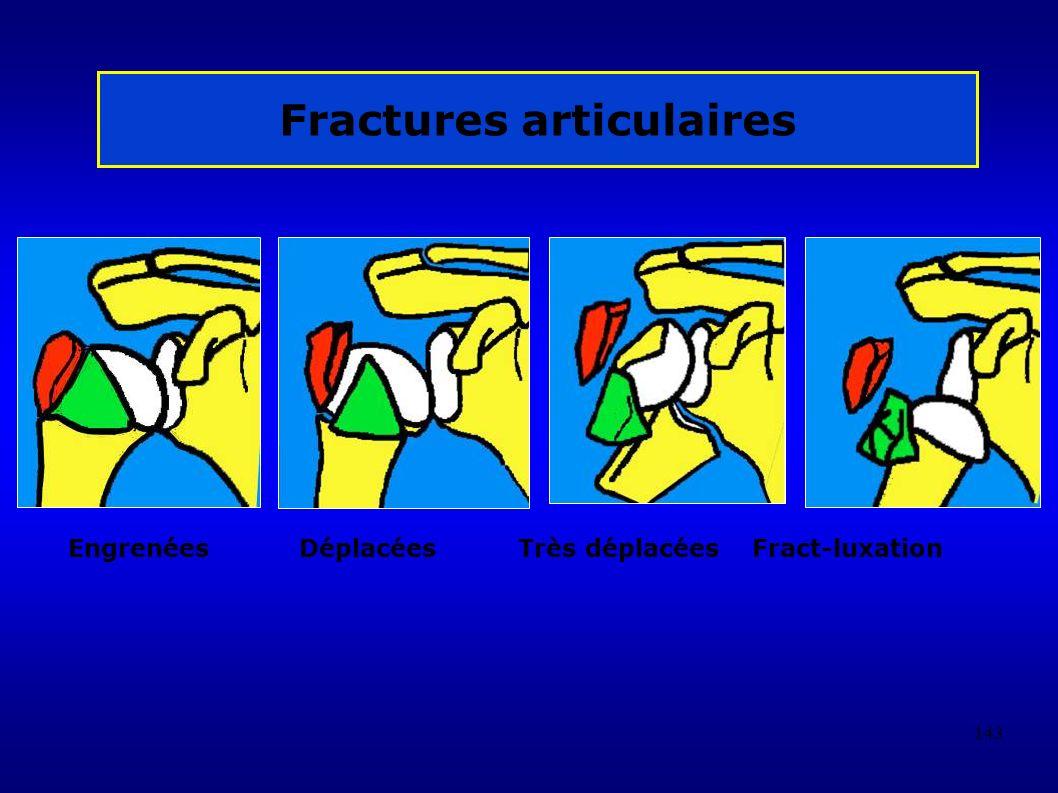 Fractures articulaires