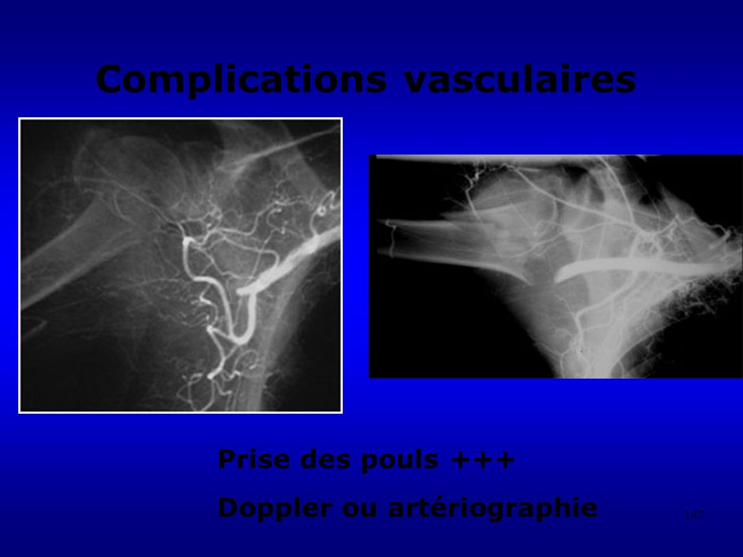 Complications vasculaires