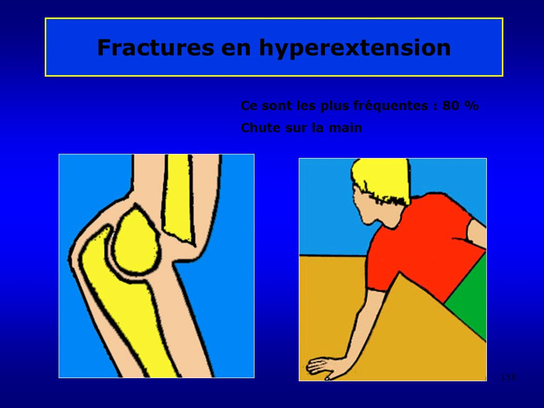 Fractures en hyperextension