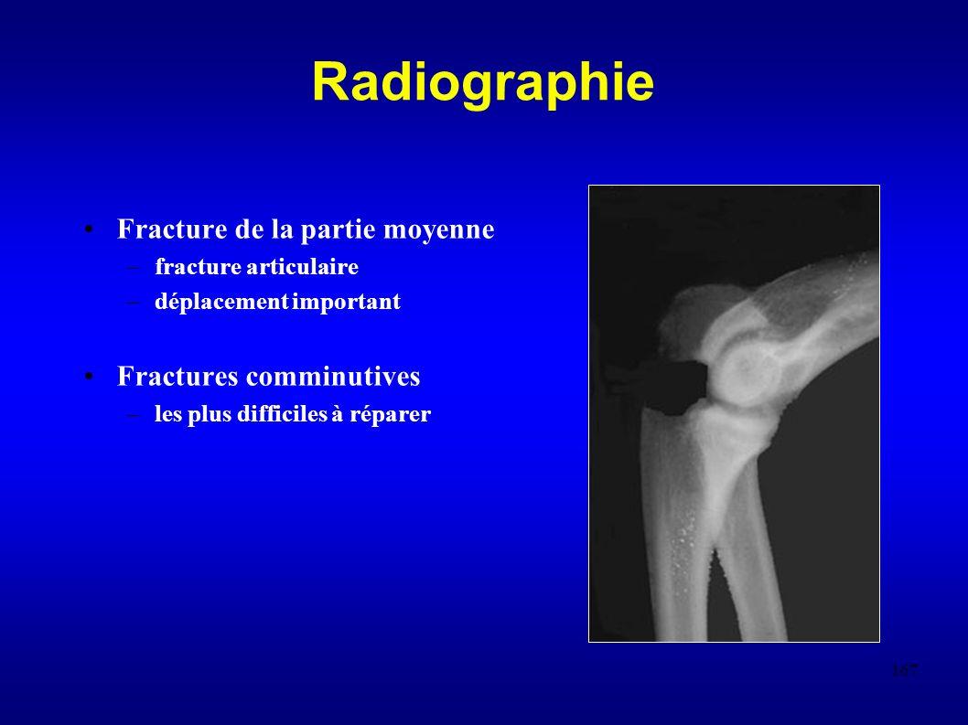 Radiographie Fracture de la partie moyenne Fractures comminutives