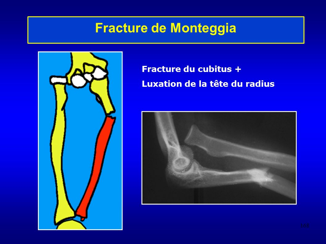 Fracture de Monteggia Fracture du cubitus +