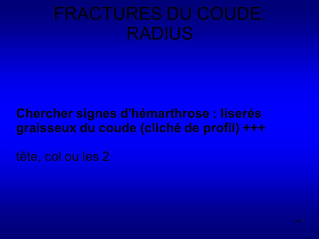 FRACTURES DU COUDE: RADIUS