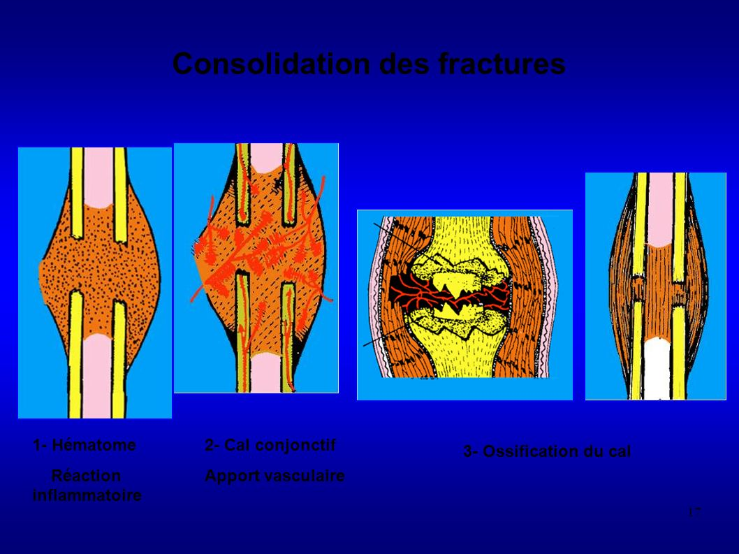 Consolidation des fractures