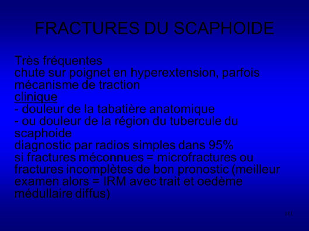 FRACTURES DU SCAPHOIDE