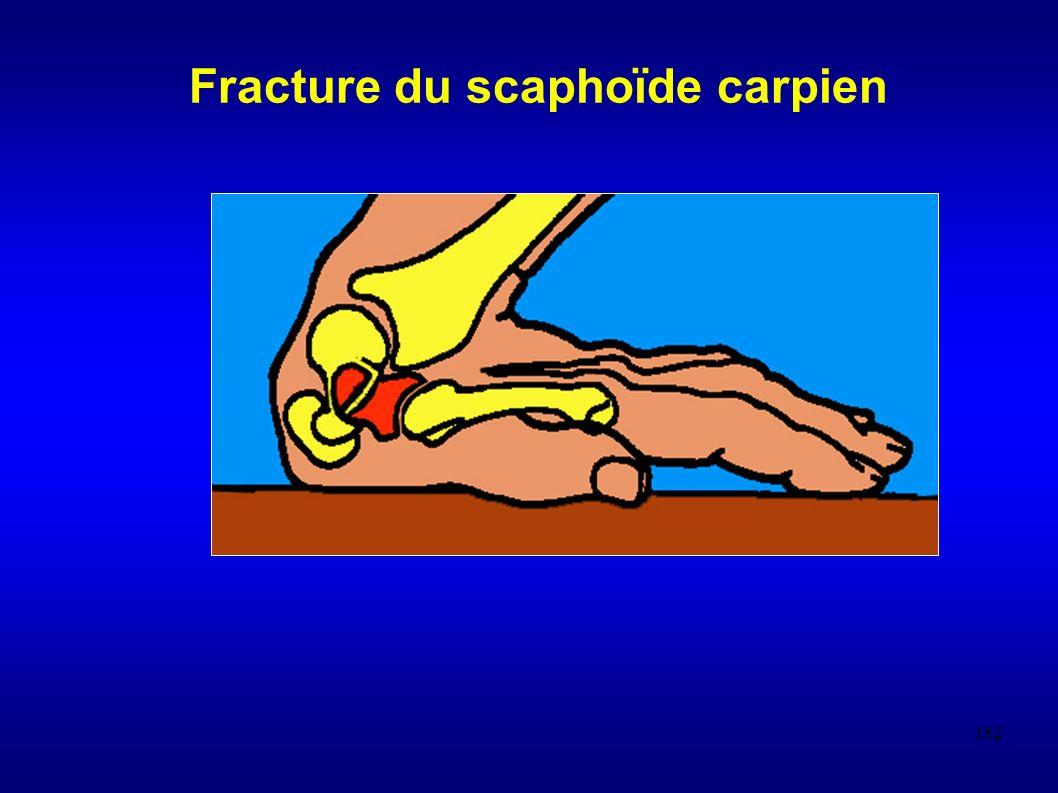 Fracture du scaphoïde carpien