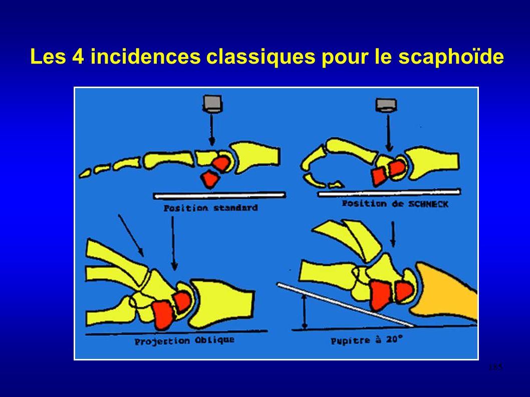 Les 4 incidences classiques pour le scaphoïde