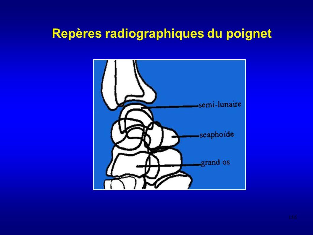 Repères radiographiques du poignet