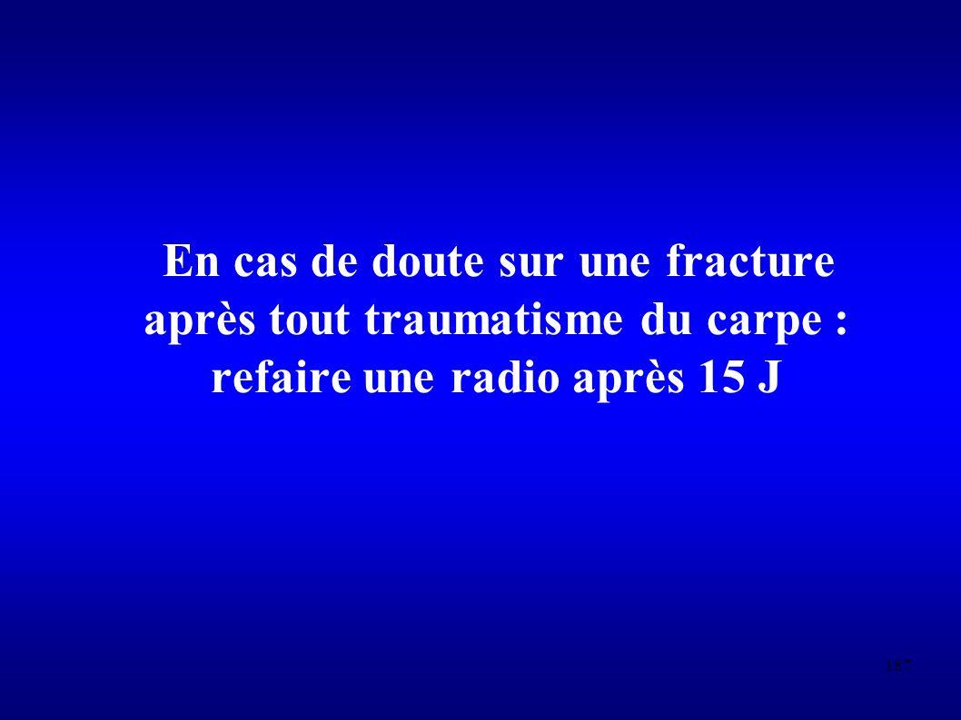 En cas de doute sur une fracture après tout traumatisme du carpe : refaire une radio après 15 J