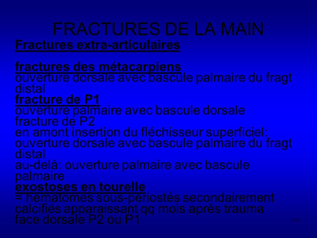 FRACTURES DE LA MAIN Fractures extra-articulaires