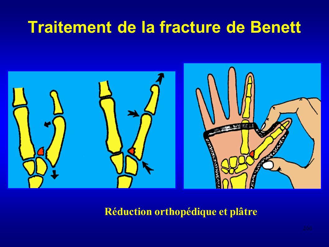Traitement de la fracture de Benett