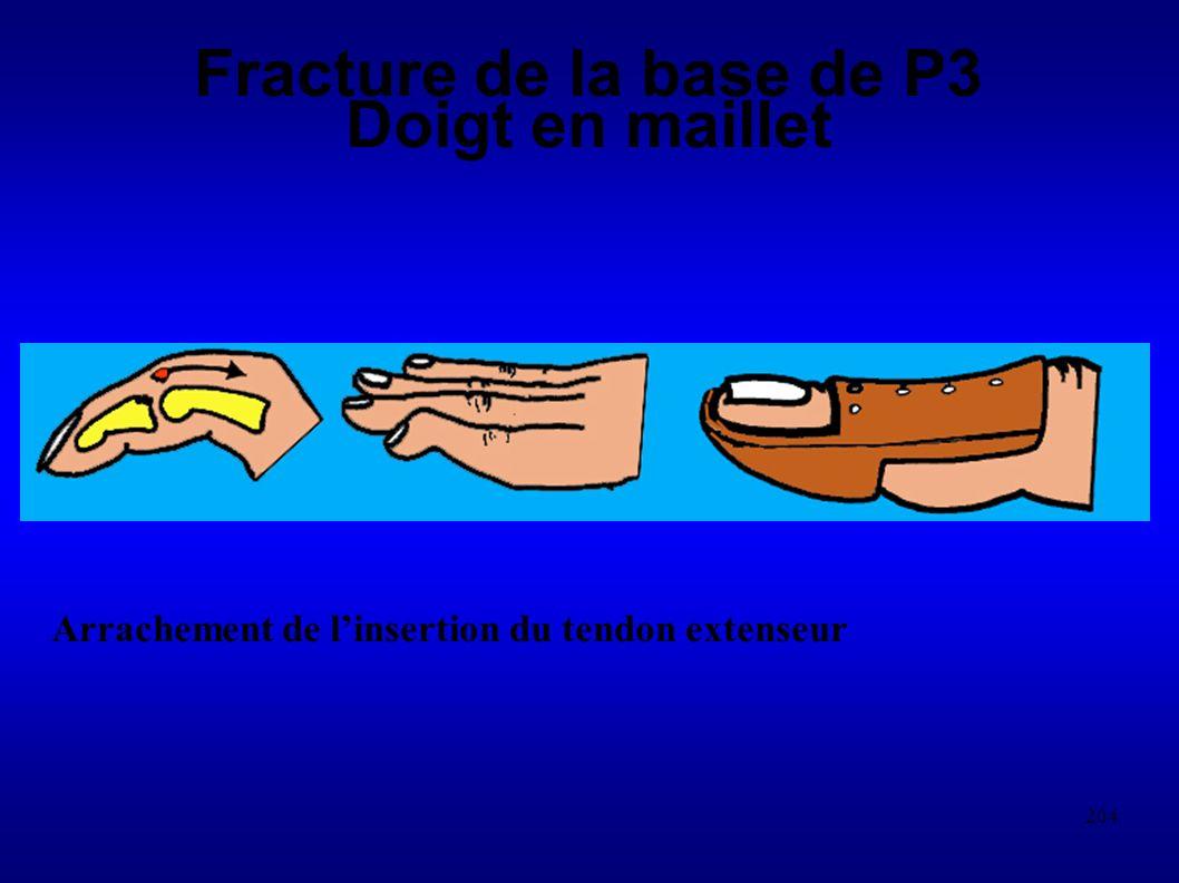 Fracture de la base de P3 Doigt en maillet