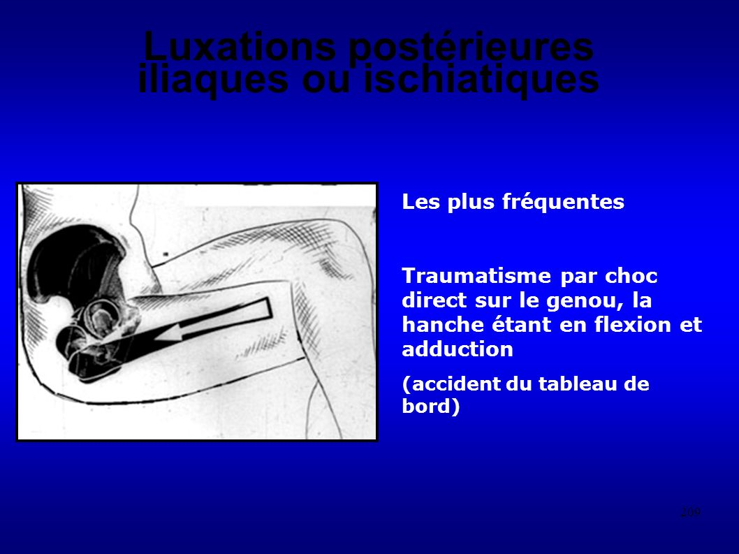 Luxations postérieures iliaques ou ischiatiques