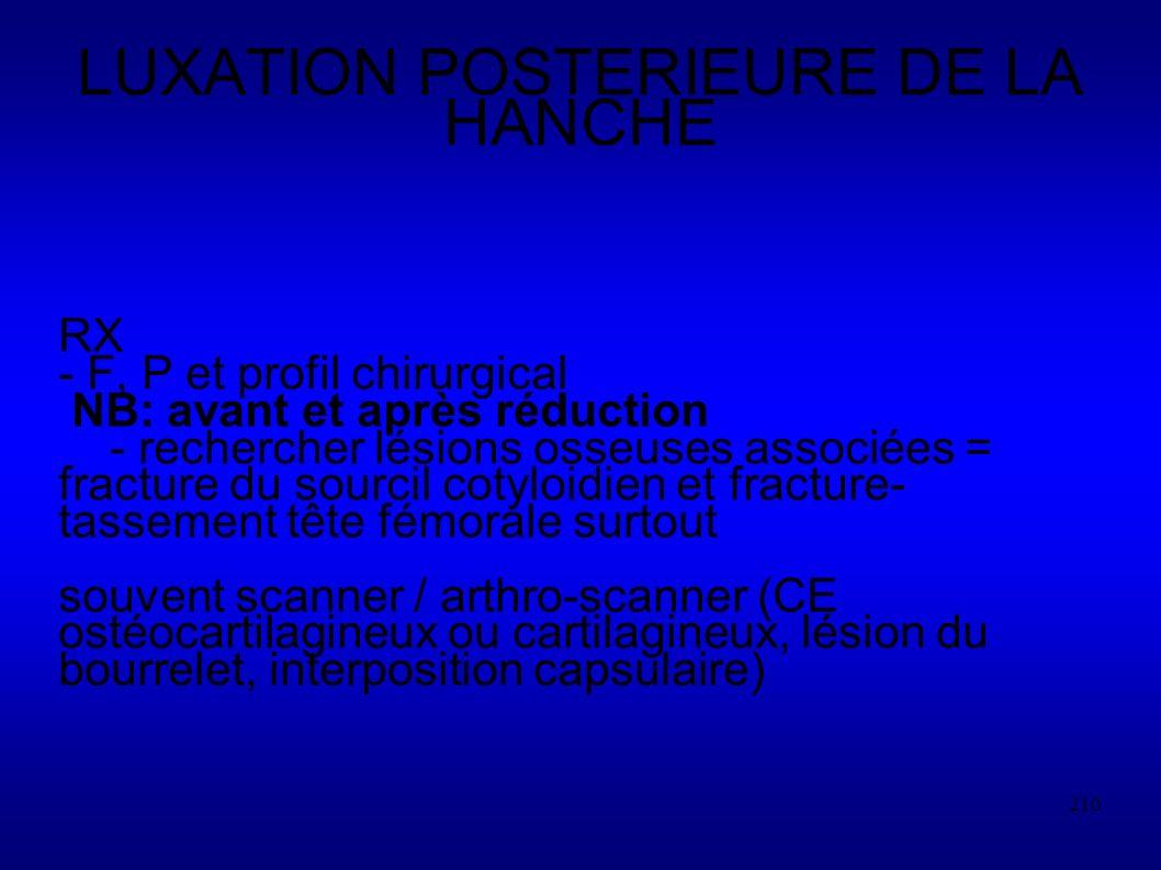 LUXATION POSTERIEURE DE LA HANCHE