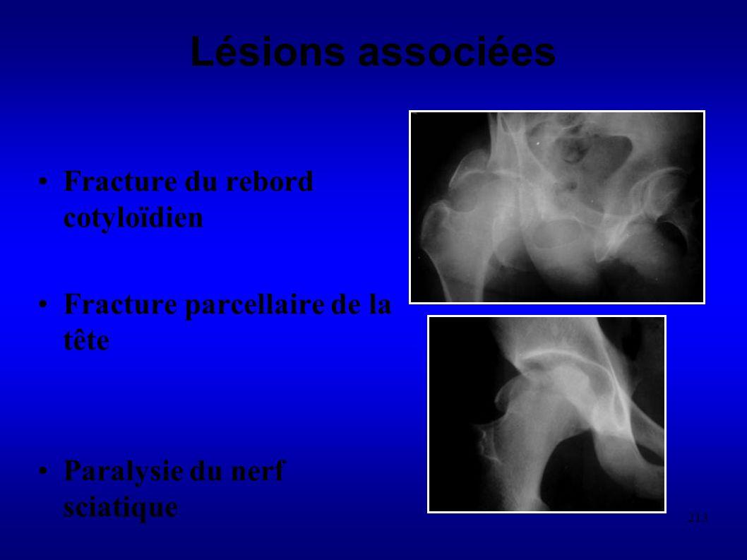 Lésions associées Fracture du rebord cotyloïdien