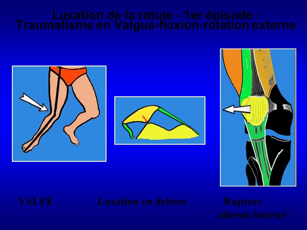 Luxation de la rotule - 1er épisode : Traumatisme en Valgus-flexion-rotation externe