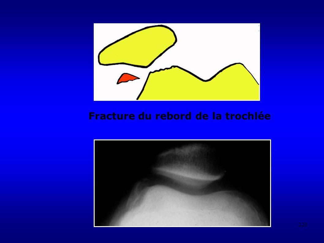 Fracture du rebord de la trochlée