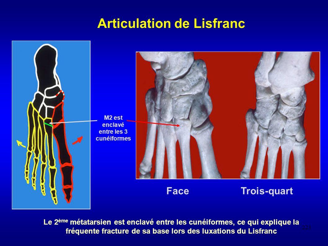 Articulation de Lisfranc M2 est enclavé entre les 3 cunéiformes