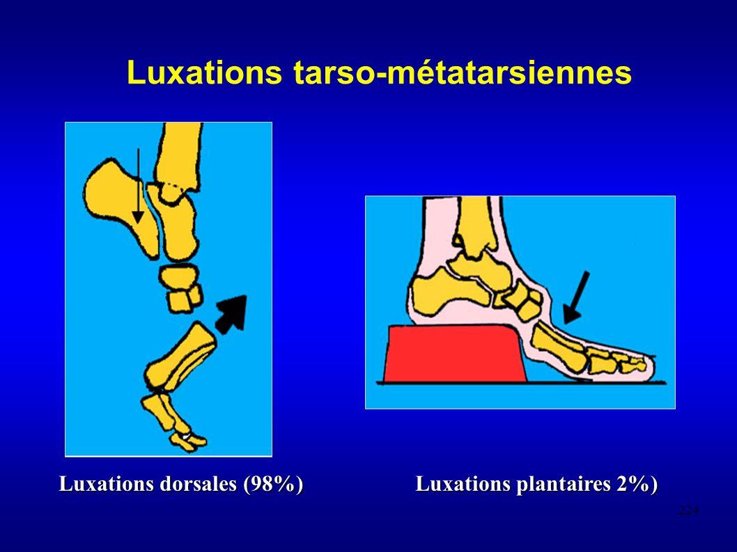 Luxations tarso-métatarsiennes