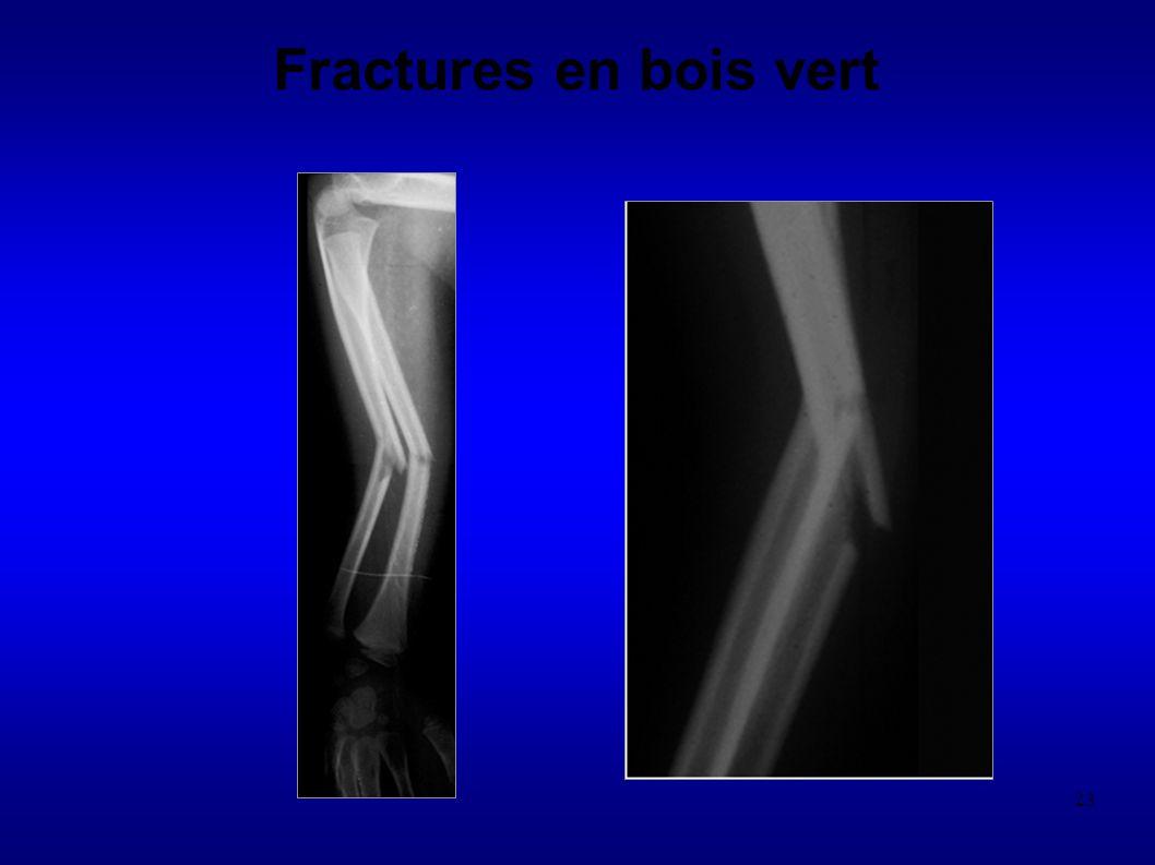 Fractures en bois vert