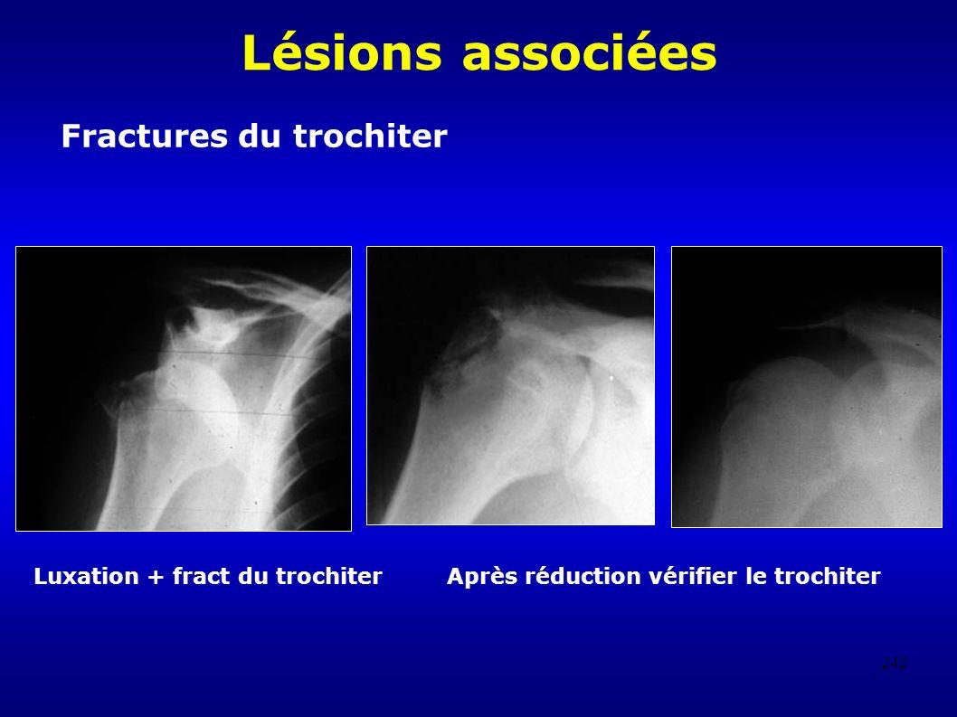 Lésions associées Fractures du trochiter