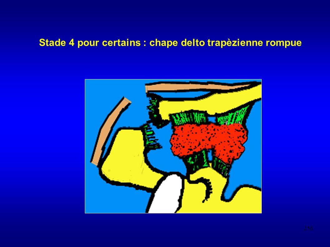 Stade 4 pour certains : chape delto trapèzienne rompue