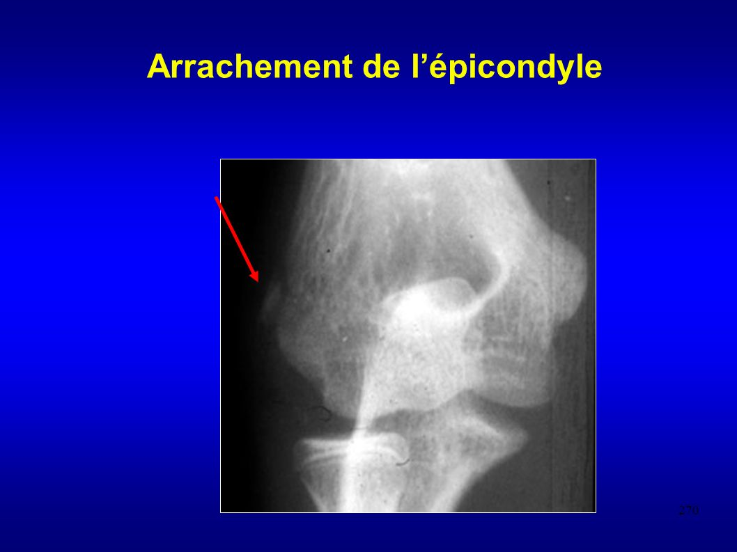 Arrachement de l'épicondyle