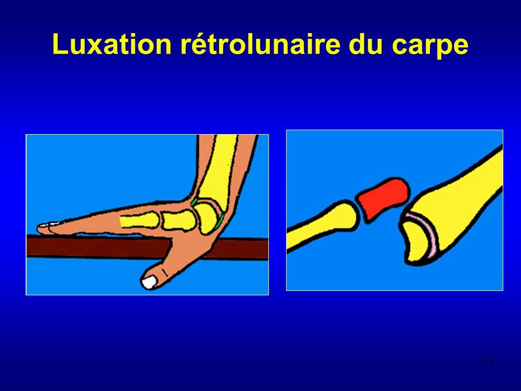 Luxation rétrolunaire du carpe