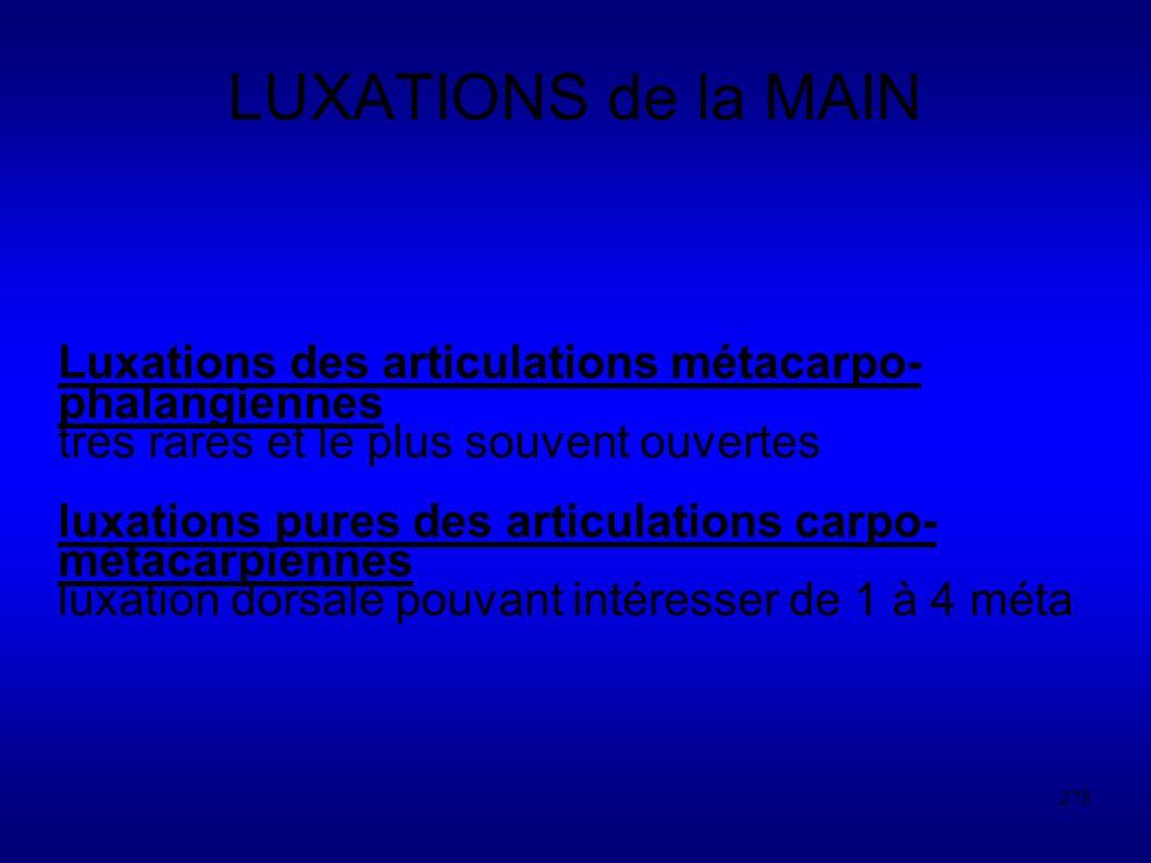 LUXATIONS de la MAIN Luxations des articulations métacarpo-phalangiennes. très rares et le plus souvent ouvertes.