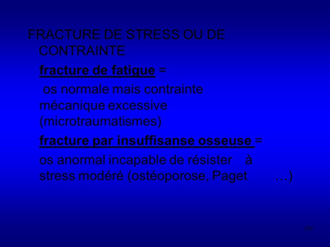 FRACTURE DE STRESS OU DE CONTRAINTE