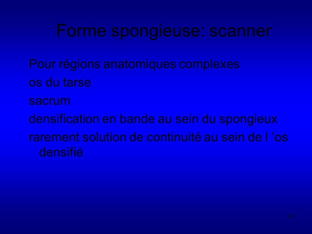 Forme spongieuse: scanner