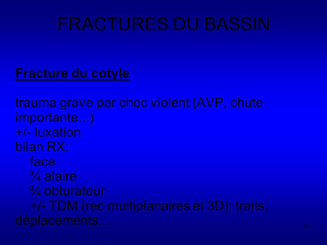 FRACTURES DU BASSIN Fracture du cotyle