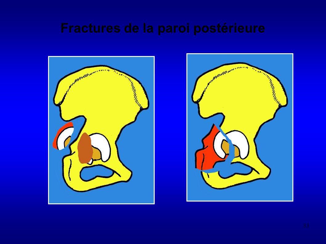 Fractures de la paroi postérieure