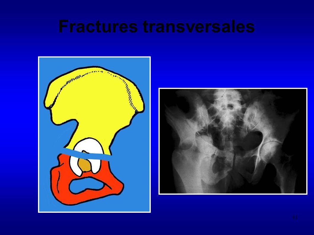 Fractures transversales