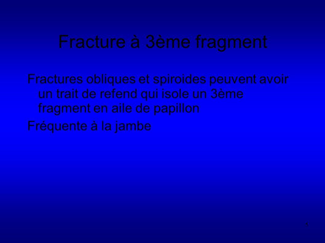 Fracture à 3ème fragment