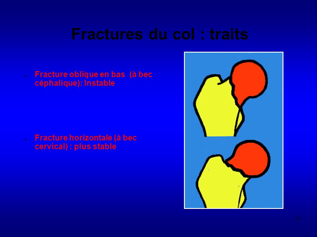 Fractures du col : traits
