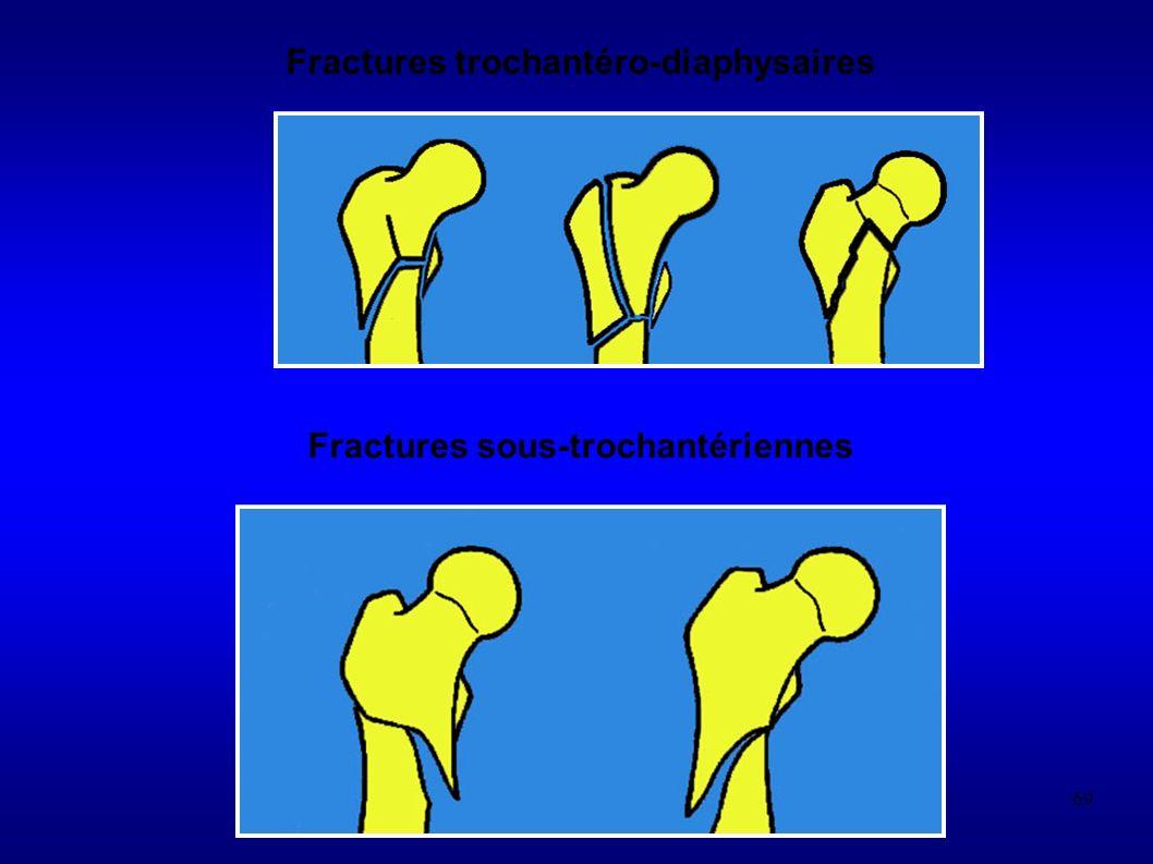 Fractures trochantéro-diaphysaires
