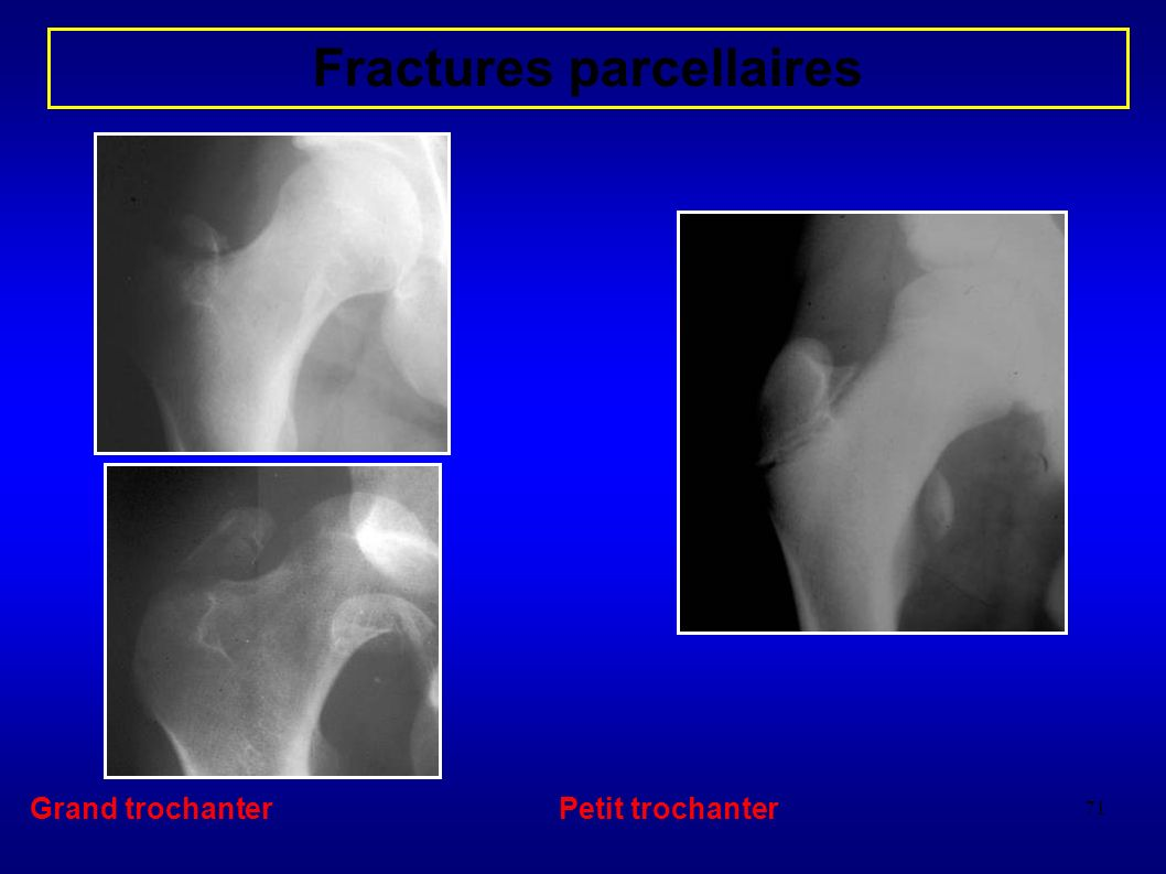 Fractures parcellaires
