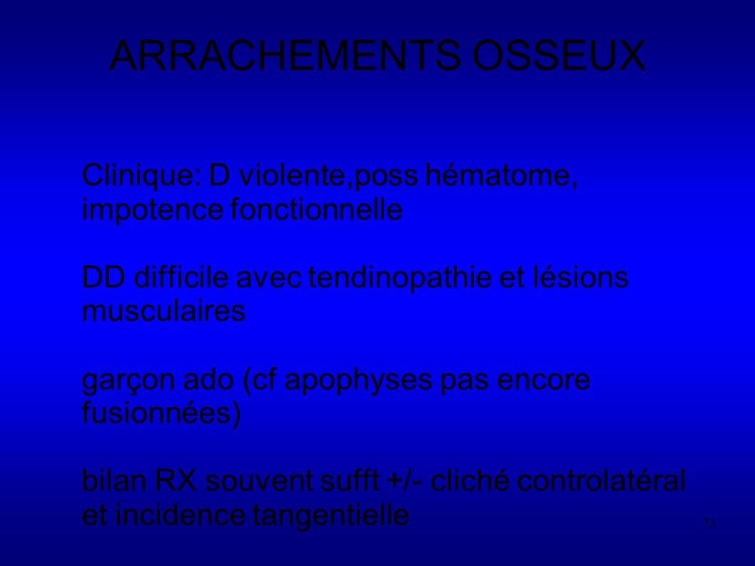 ARRACHEMENTS OSSEUX Clinique: D violente,poss hématome, impotence fonctionnelle. DD difficile avec tendinopathie et lésions musculaires.