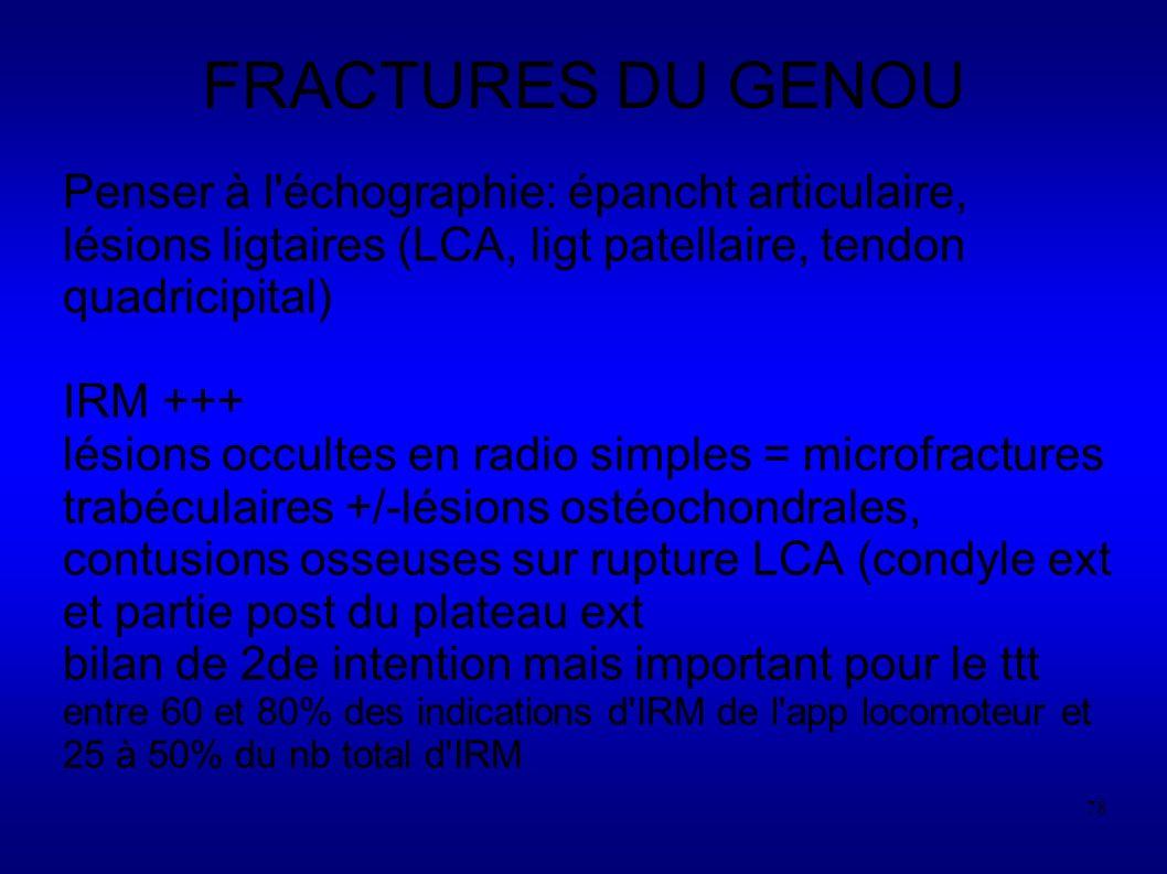 FRACTURES DU GENOU Penser à l échographie: épancht articulaire, lésions ligtaires (LCA, ligt patellaire, tendon quadricipital)