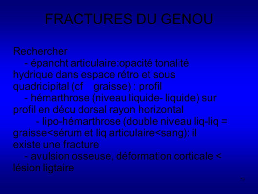 FRACTURES DU GENOU Rechercher