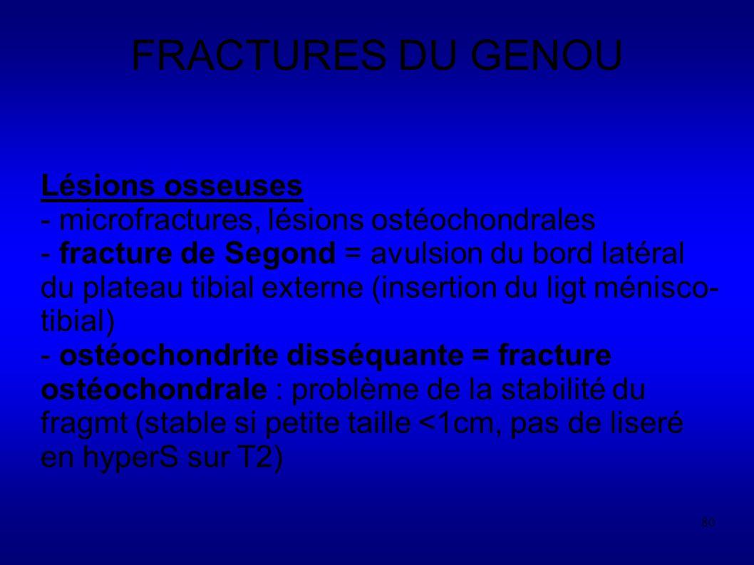 FRACTURES DU GENOU Lésions osseuses