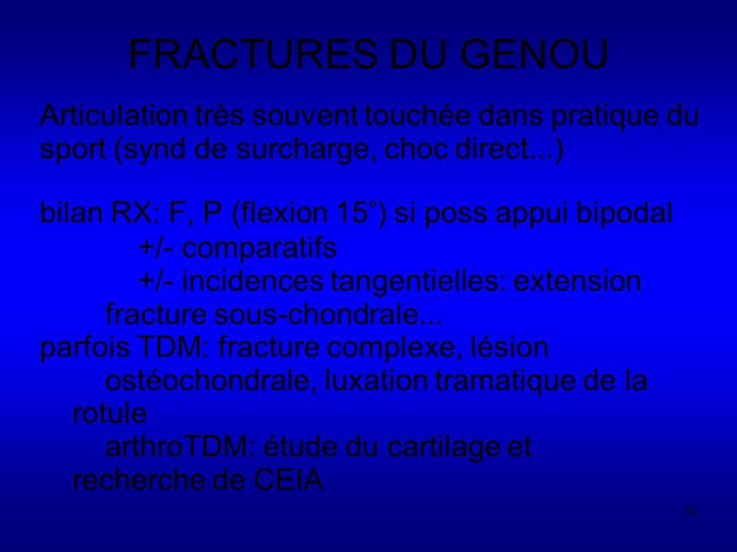 FRACTURES DU GENOU Articulation très souvent touchée dans pratique du sport (synd de surcharge, choc direct...)