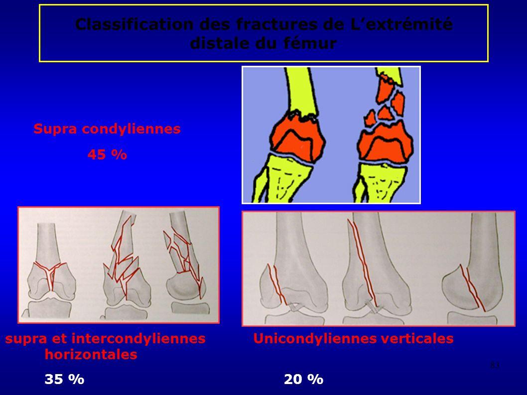 Classification des fractures de L'extrémité distale du fémur