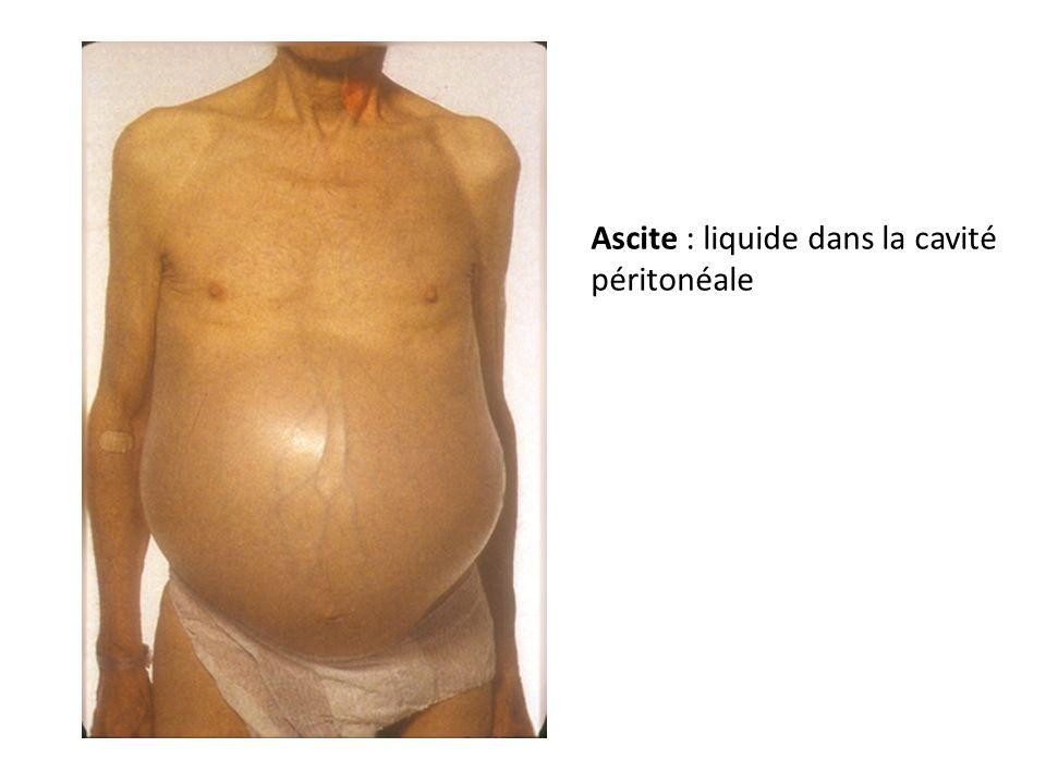 Ascite : liquide dans la cavité péritonéale