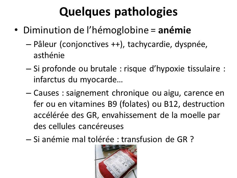 Quelques pathologies Diminution de l'hémoglobine = anémie