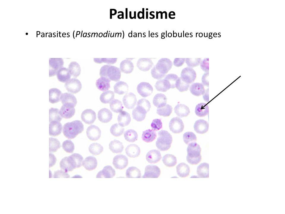 Paludisme Parasites (Plasmodium) dans les globules rouges